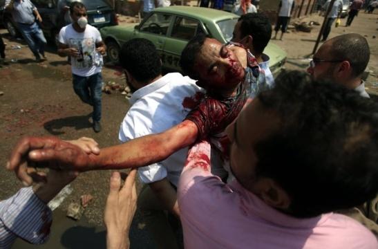 14ago2013---partidarios-do-presidente-deposto-do-egito-mohammed-mursi-carregam-um-homem-ferido-pelas-forcas-de-seguranca-egipcias-no-leste-de-nasr-distrito-da-cidade-do-cairo-1376491672699_1024x675